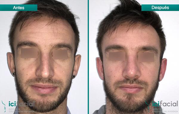 experto casual facial en Madrid
