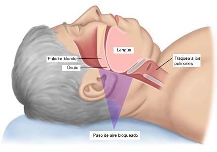 Hombre con problemas de apnea del sueño