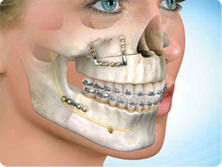Mujer despues de cirugia ortognatica