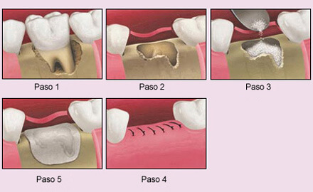 Implantes dentales sin hueso