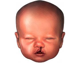 Bebe con problema de labio leporino y paladar hendido