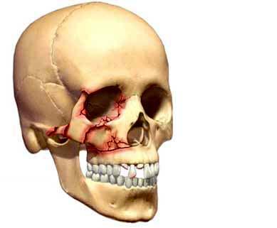 Cirugía de traumas faciales en Madrid