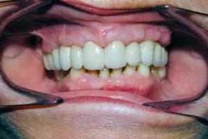 Mismo paciente con implantes y coronas