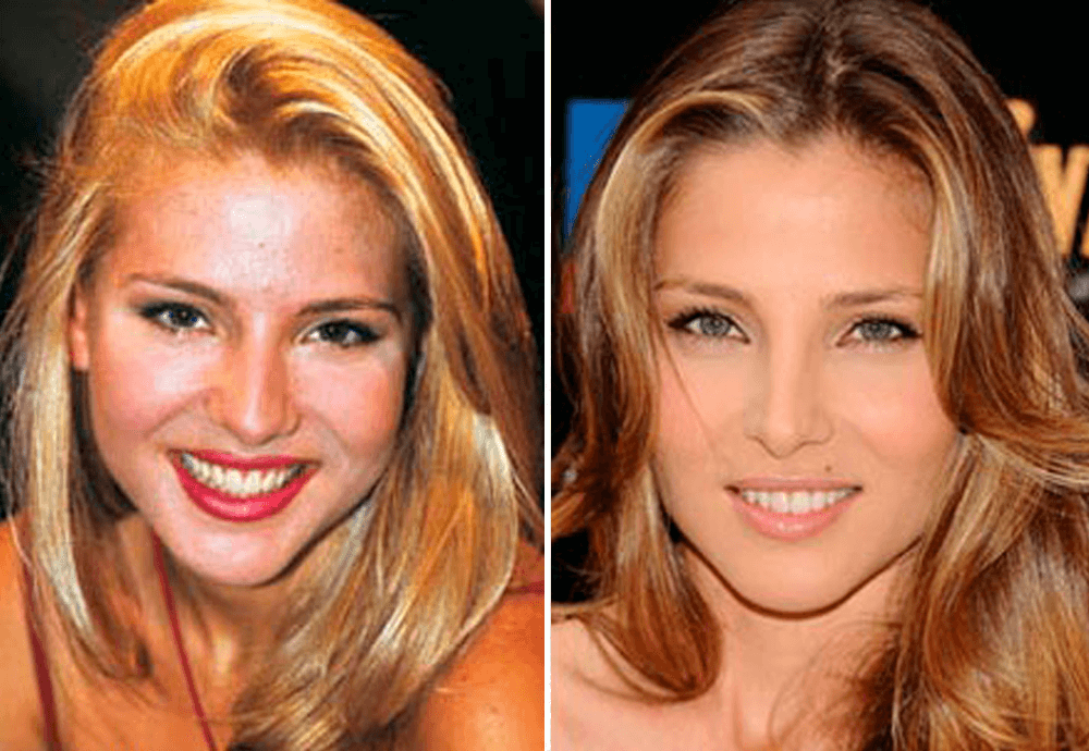 Antes-Despues-Elsa-Pataky