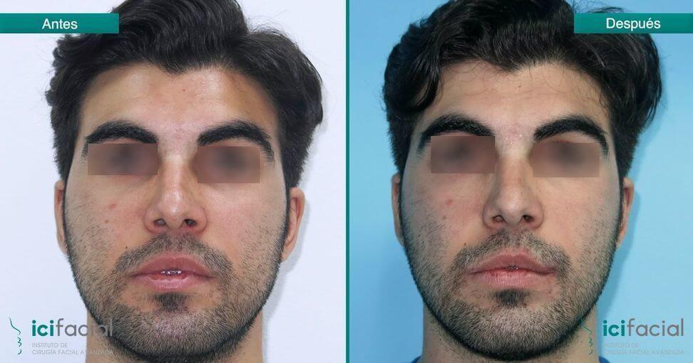 Bichectomía en hombre antes y después