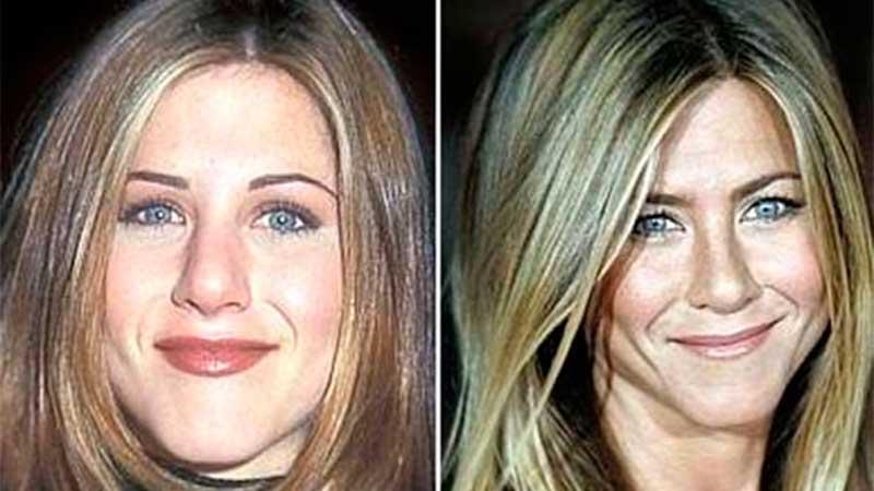 Antes y después en la bichectomía de Kim Kardashian