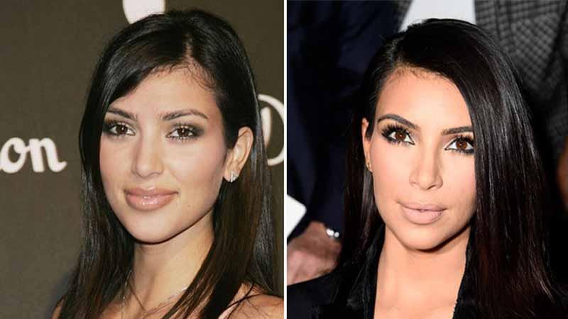 Bichectomía de Kim Kardashian con pómulos pronunciados