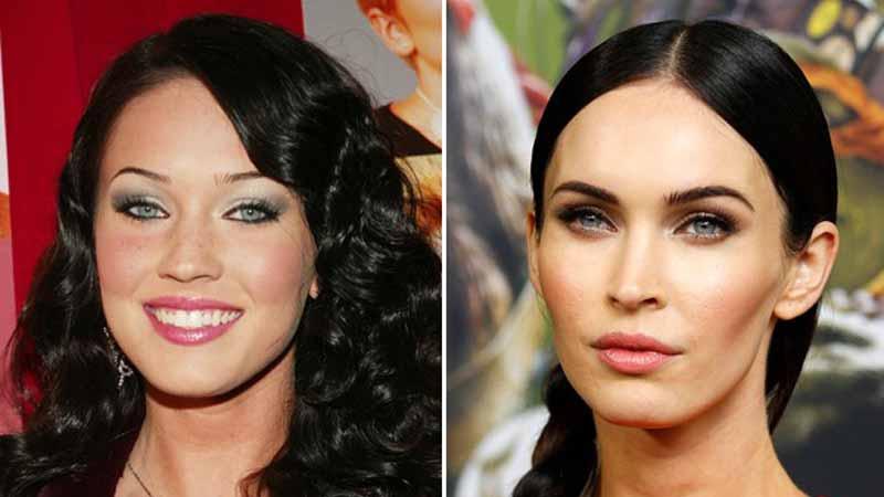 Antes y después en la bichectomía de Megan Fox