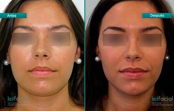 Bichectomía en mujer joven por Dr Macía Colón