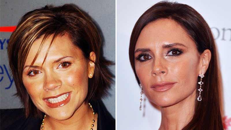 Antes y después en la bichectomía de Victoria Beckam