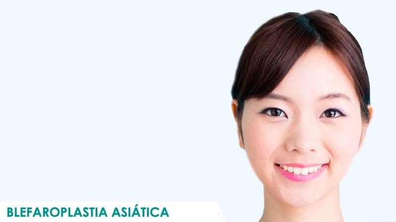 Operación de blefaroplastia asiática en Madrid por Dr. Macía