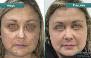 Mujer sometida a una blefaroplastia en Madrid antes y después