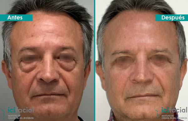 Hombre operado de blefaroplastia completa por Dr. Macía