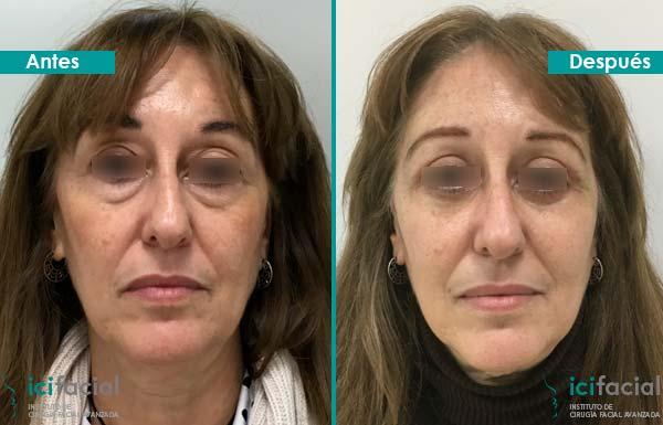 Mujer operada de blefaroplastia completa por Dr. Macía