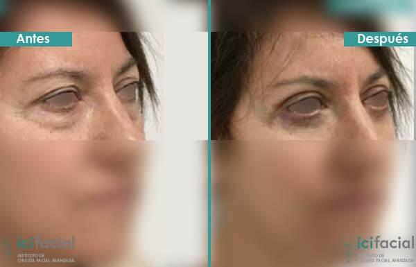 Blefaroplastia completa antes y después