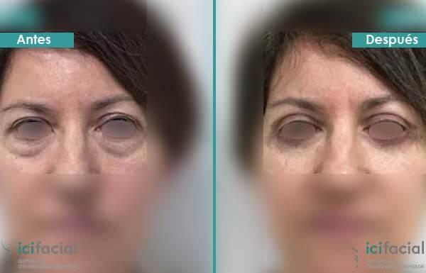 Blefaroplastia completa antes y después frontal