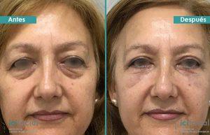 Blefaroplastia mujer con lipofilling infraorbitario antes y después