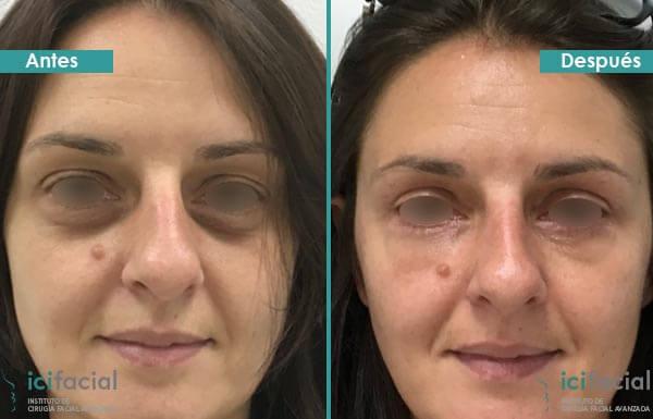 Blefaroplastia antes y después en mujer con lipofilling infraorbitario