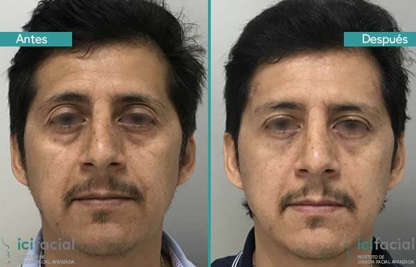 Blefaroplastia completa hombre antes y después