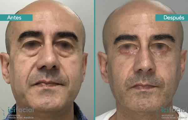 Blefaroplastia inferior hombre antes y después