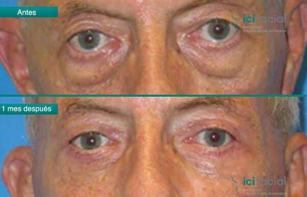 Blefaroplastia de hombre antes y después