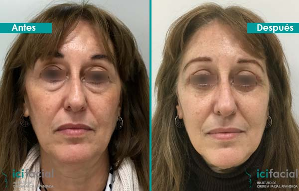 Blefaroplatia en Madrid de mujer