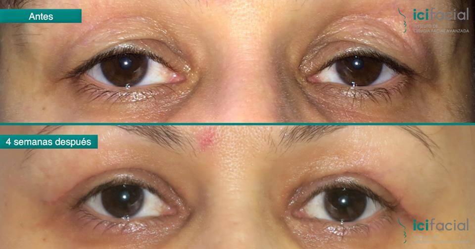 Mujer operada por párpados de ojos caidos
