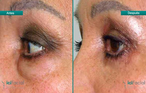 Blefaroplastia superior antes y después