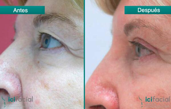 Mujer sometida a una blefaroplastia superior en Madrid antes y después