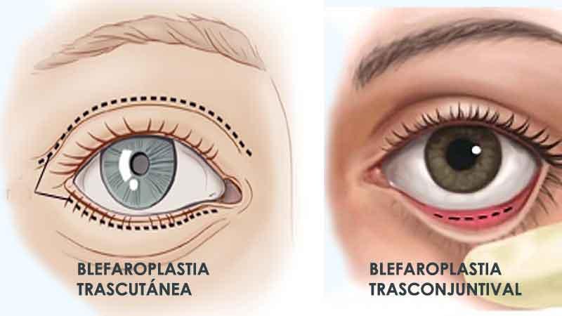 Diferencias entre blefaroplastia trasconjuntival y trascutanea