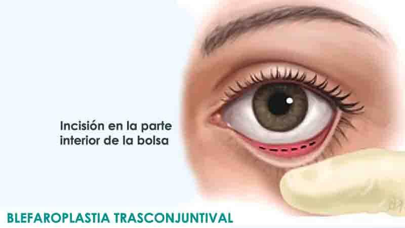 Cirugía de párpados inferiores mediante blefaroplastia transconjuntival en Madrid
