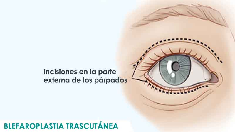 Blefaroplastia transcutánea en Madrid por Dr. Macía Colón