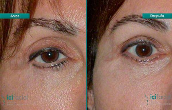 Blefaroplastia con cantoplastia antes y después