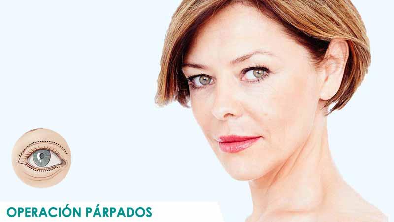 Mujer operada de cirugía de bolsas en Madrid