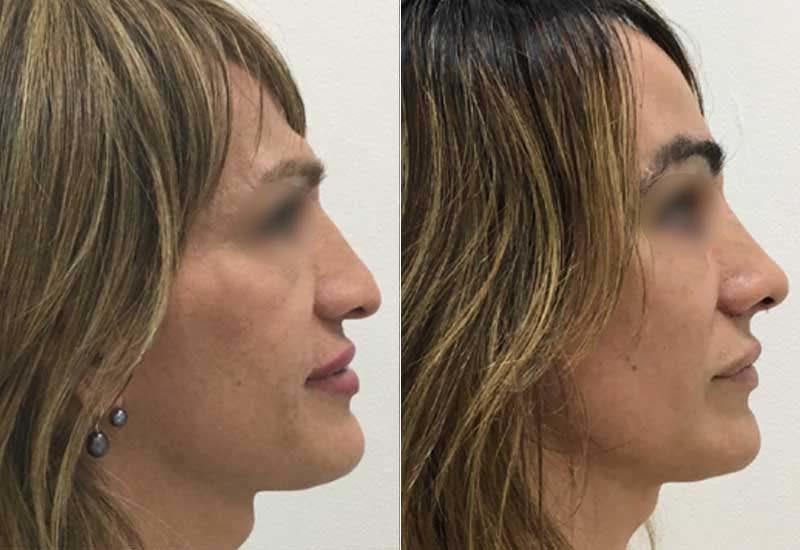 Cirugía de feminización facial en Madrid