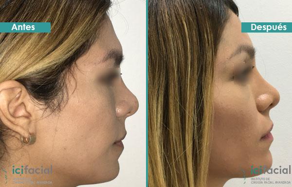 facial Cirugia femenizacion