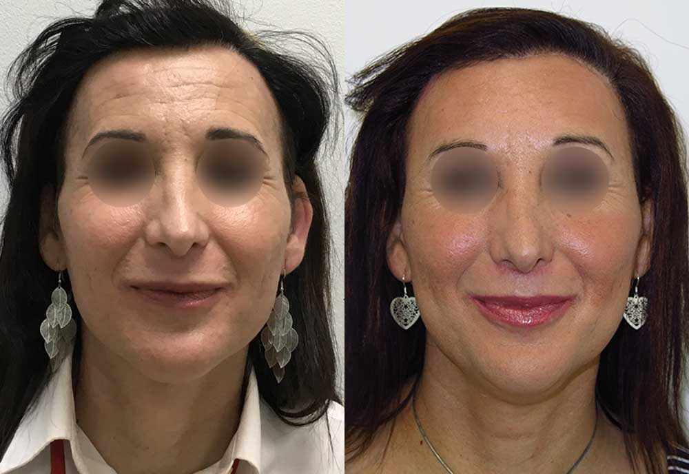 Cirugía de feminización facial de Lola