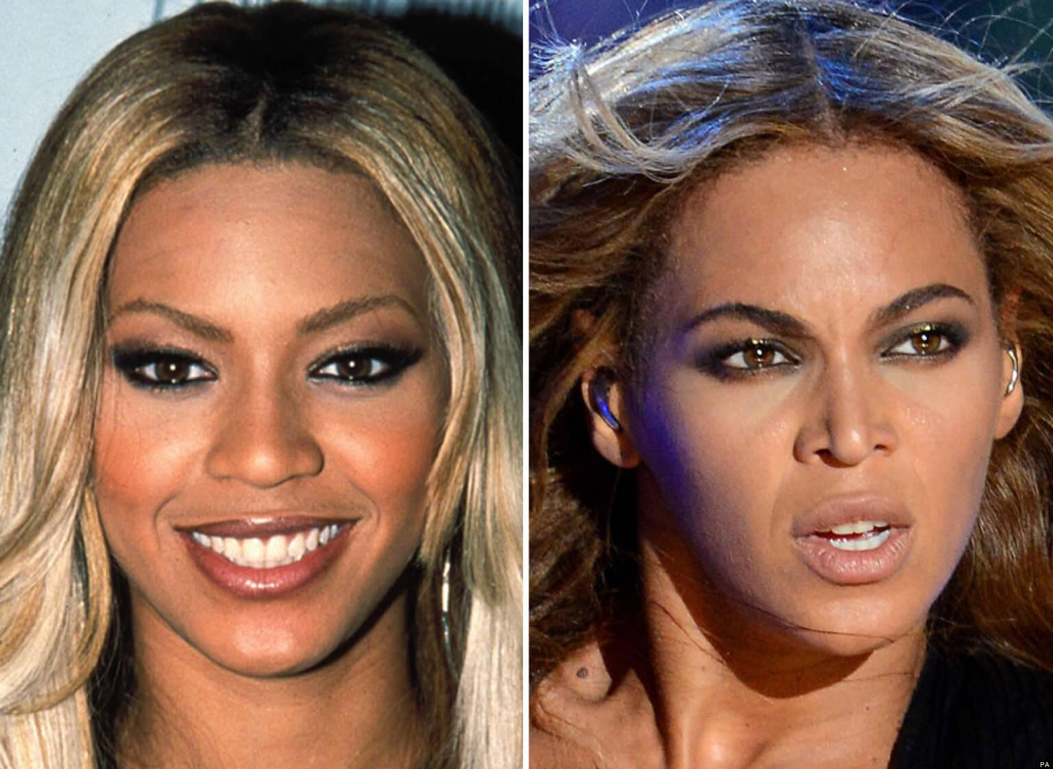 Cirugía de nariz de Beyonce