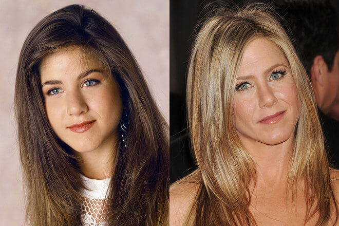 Rinoplastia Jennifer Aniston