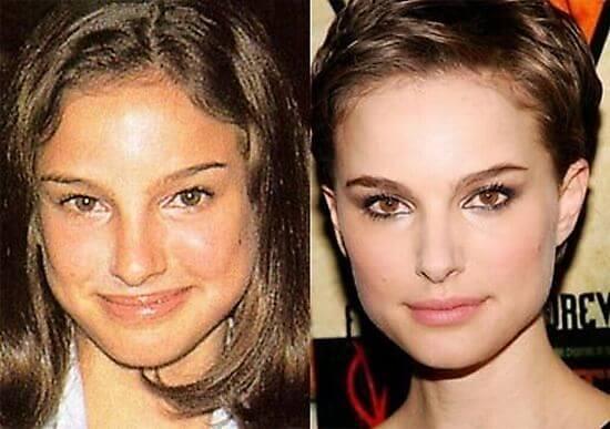 Cirugía de nariz Natalie Portman