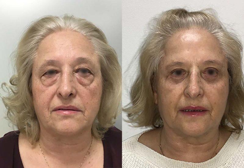 Cirugía de párpados antes y después por Dr Macía
