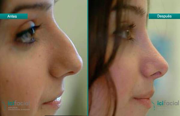 Cirugías faciales populares: rinoplastia