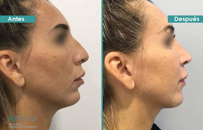 Rinoplastia y cirugía del mentón