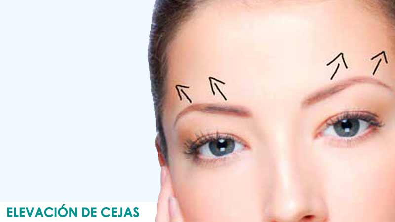 Cirugía elevación de cejas en Madrid