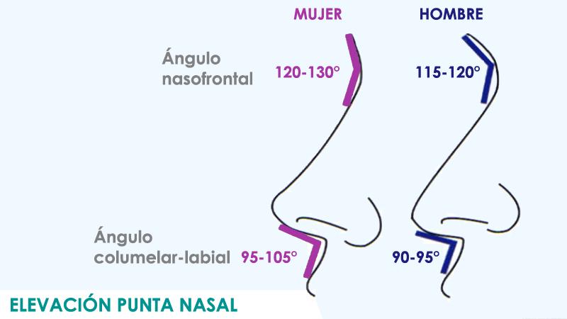 Elevar la punta de la nariz en Madrid con cirugía de rinoplatia