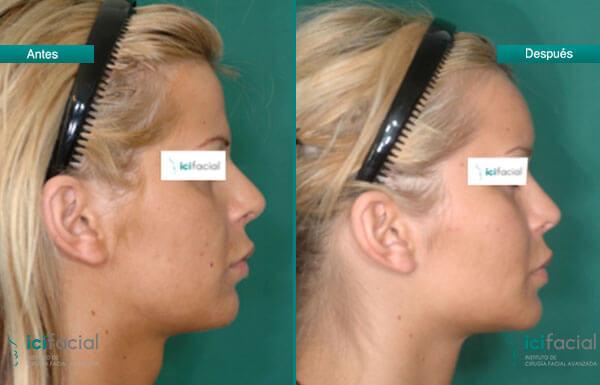 Casos reales de feminización facial antes y después por Dr. Macía