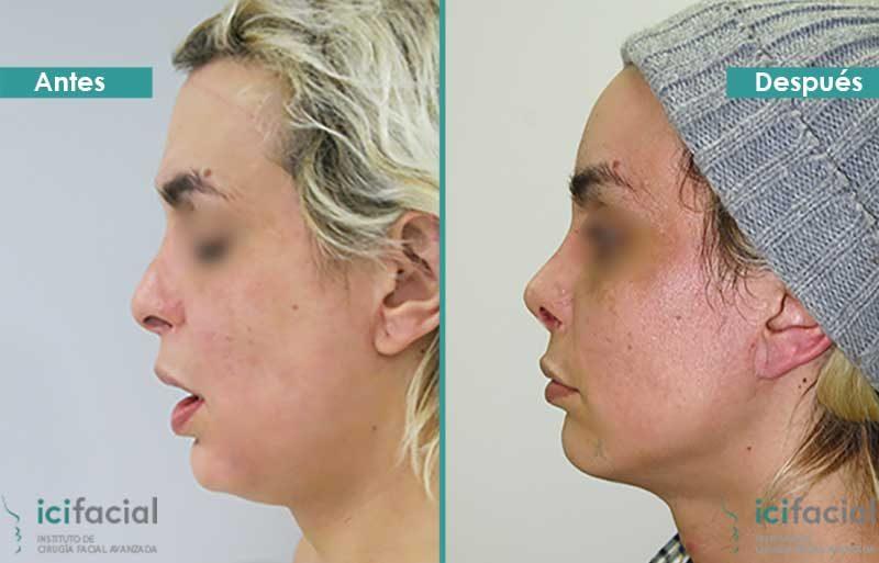 Paciente operada de feminización facial: frontoplastia (frente), rinoplastia de feminización y elevación de cejas