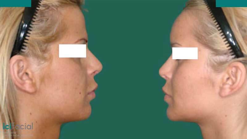 Cirugía de feminización en pacientes de transgenero