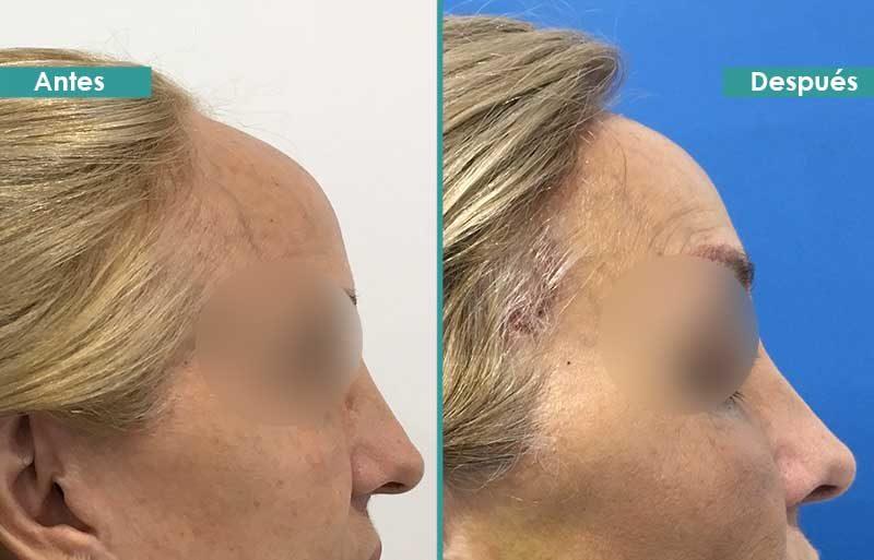 Frontoplastia de reducción de hueso frontal en mujer