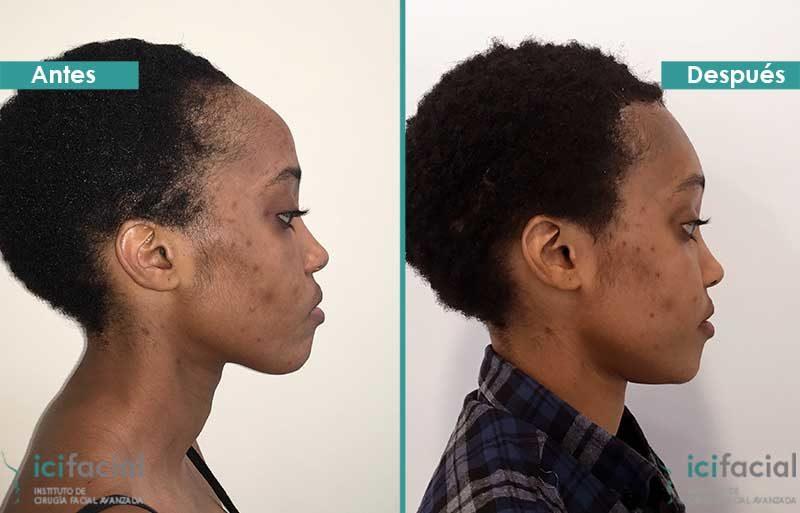 Frontoplastia de feminización en mujer